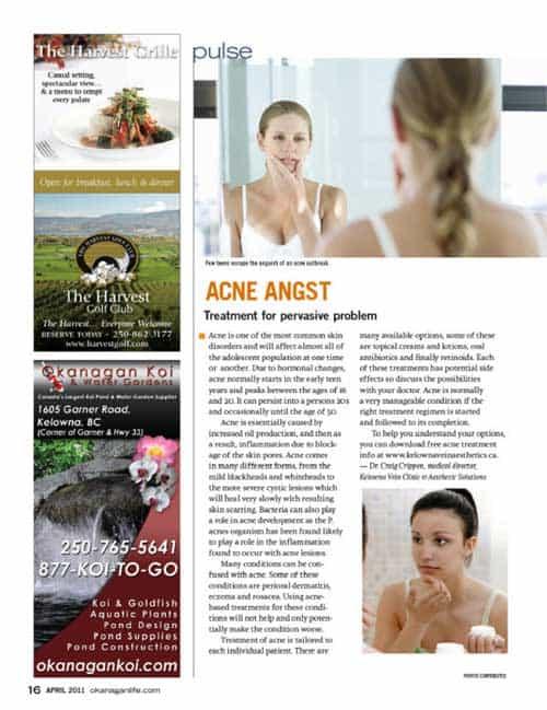 acne angst