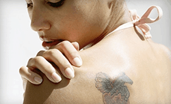 start new year fresh with tattoo removal