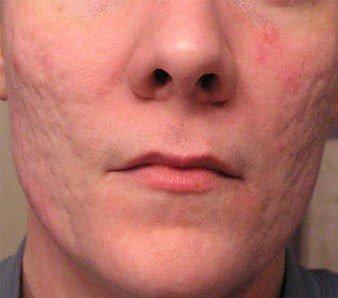 acne_scars