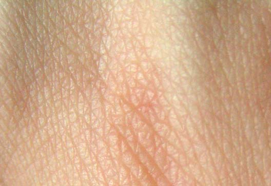 skin-and-laser-treatments