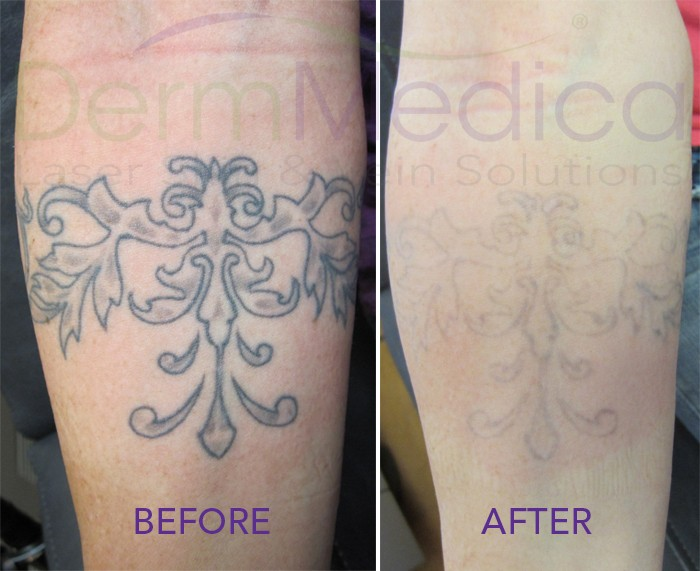 tattoo-fading-before-after