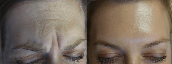 botox-in-kelowna-treatment-forehead-dermmedica