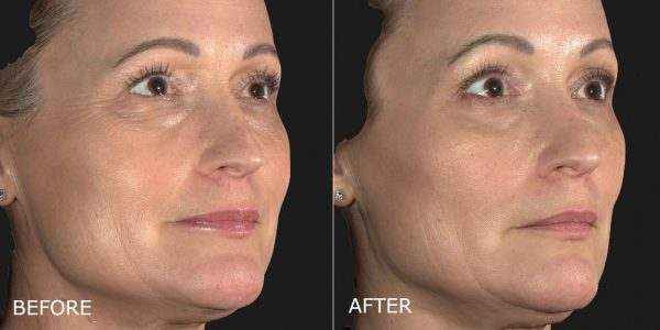1-botox-crows-feet-and-filler-tear-troughs-right-45